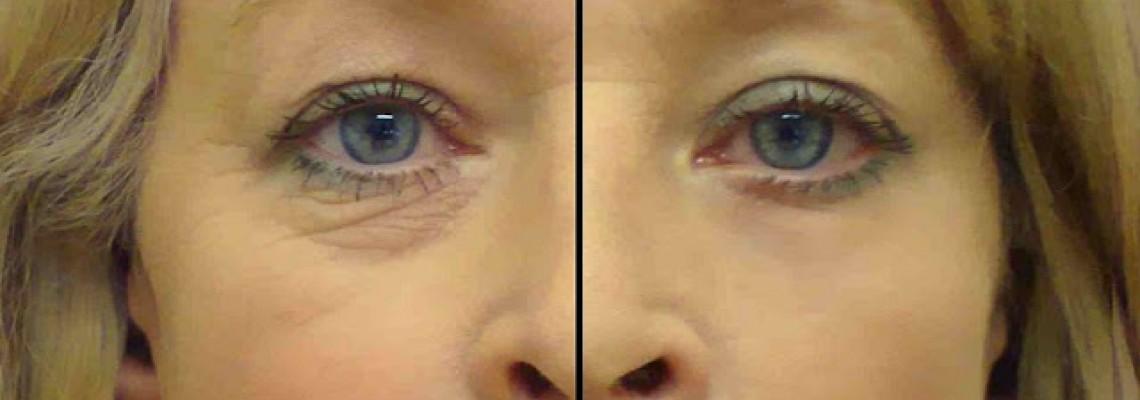 Това Най-Мощно Лекарство Срещу Бръчките Около Очите Има Само 2 Съставки !